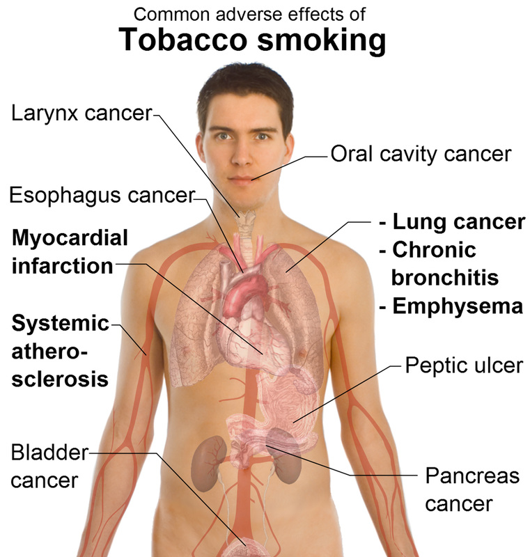 Long Term Effects Of Smoking >> Long Term Effects Too Cool For Smoking